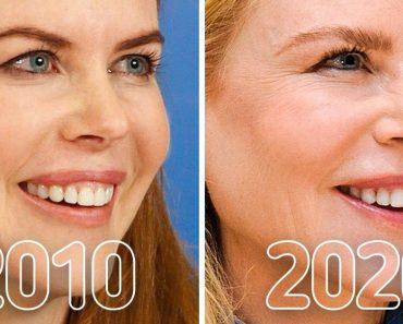 20+ fotó, amely egyértelműen megmutatja, hogyan változtak meg a hírességek az elmúlt 10 évben