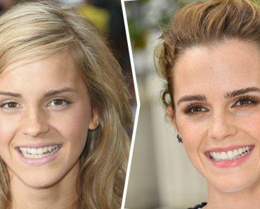 Hogyan változott 15 híresség mosolya, miután rendbe hozták a fogukat