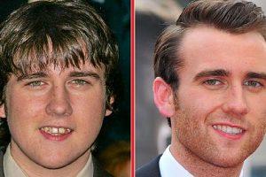 Hogyan változott meg 15 sztár arca, miután megcsináltatták a fogukat