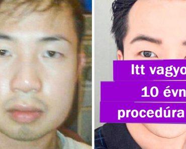 20 ember, aki a saját boldogságát választotta, a plasztikai műtét mellett döntött, és nyert