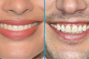Kísérlet: Meg tudod tippelni, melyik sztár van a képen, ha csak a szájukat látod?
