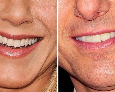 Teszt: Fel tudod ismerni a hírességeket csak a mosolyuk alapján?