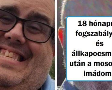 17 személy, aki plasztikáztatta magát és a műtét után 180 fokos fordulatot vett az élete