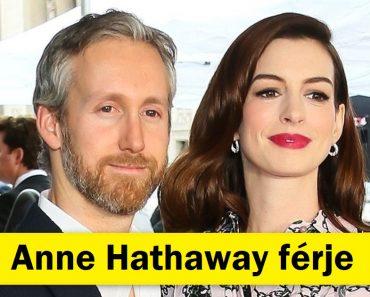 Hogyan néznek ki az egyedülállóan gyönyörű híres nők párjai