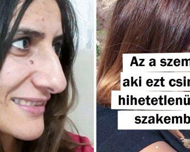 20+ lány, akik úgy döntöttek, hogy plasztikai műtéten esnek át és bizonyították, hogy nincsenek határok, ha a tökéletességről van szó