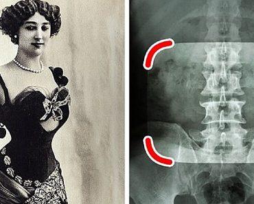 10 divattrend a régi időkből, ami bebizonyítja, hogy az emberek bármire képesek voltak a szépségért