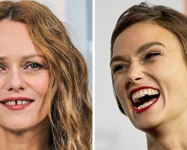 16 híresség, akik felvállalják a tökéletesen tökéletlen mosolyukat