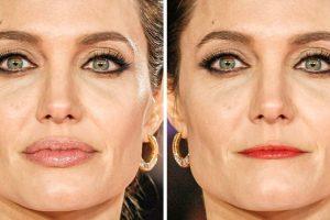 """17 fotó, ami megmutatja, hogyan változtathatja meg az arcodat az ajkaid """"átszabása"""""""
