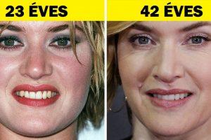 15+ híresség, akik nem törődnek az idővel és a korral még szebbek lettek