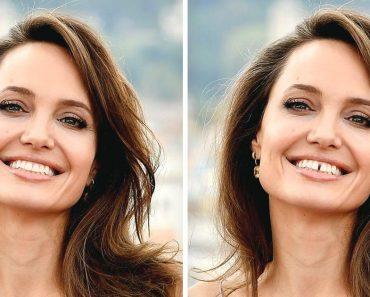 15 fotó, amely megmutatja, hogyan változtatják meg a fogak az arcodat