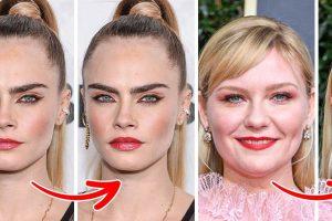 Hogyan nézne ki 15+ híresség, ha elvégeztetnék magukon az egyik legnépszerűbb szépségápolási beavatkozást