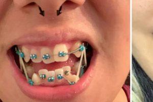 15 fotó, amely bebizonyítja, hogy bárkinek a fogai tökéletes mosollyá varázsolhatók